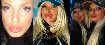 girls with collagen lips. disaster